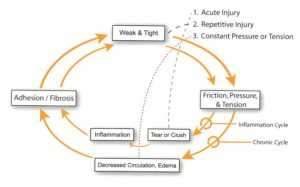 A graphic explaining the active release technique provided by TruSpine in San Francisco, CA