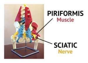piriformis and sciatica