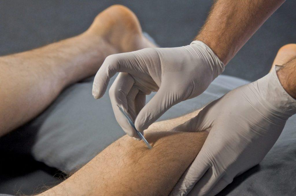 trigger point dry needling safety