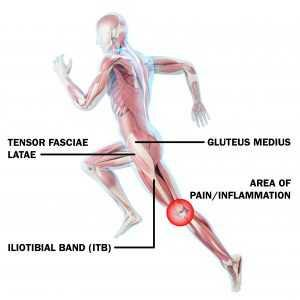 iliotibial band syndrome for runners